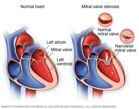 a nurse is monitoring a client who has heart failure related to mitral stenosis-0