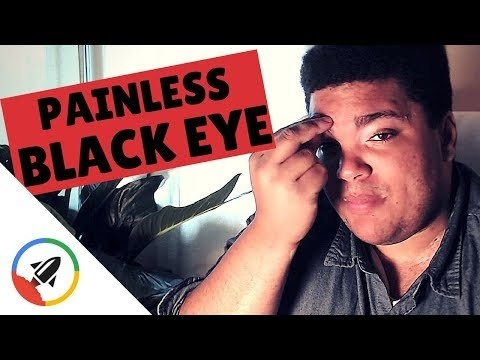 how to give yourself a black eye-1